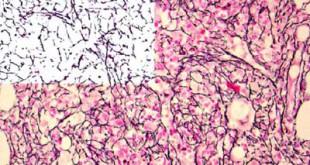 Mielofibrose