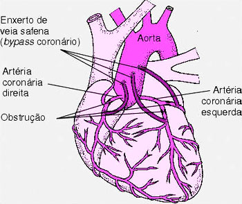 Angina do Peito