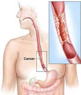 Câncer de Esôfago