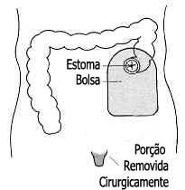 Câncer do Orifício Retal