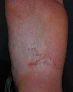 Dermatose Serpiginosa