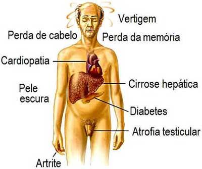 Hemocramatose