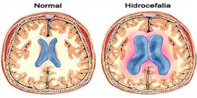 Hidrocefalia
