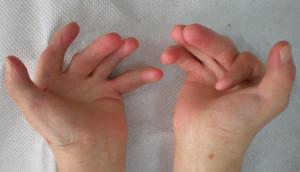 Artrogripose