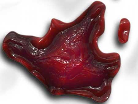 Trombocitemia Essencial