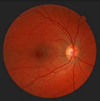 Retina Normal