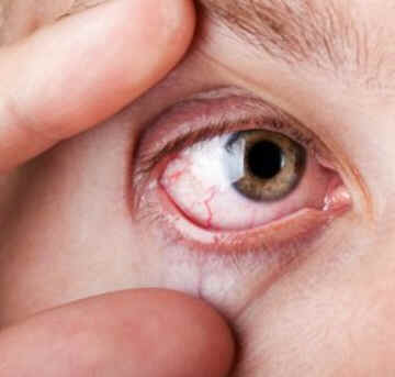 Os sintomas mais comuns da Síndrome de Sjogren são os olhos e a boca secos, porque a capacidade do corpo de produzir saliva e lágrimas é reduzida