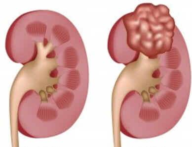 Lesões renais