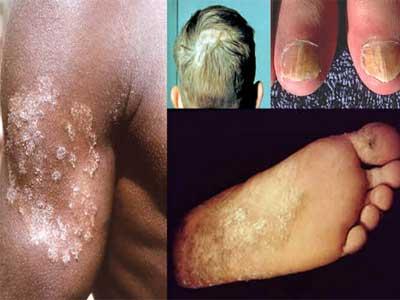 Dermatófitos