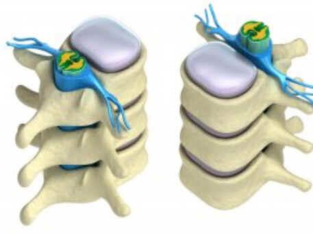 Estenose Cervical
