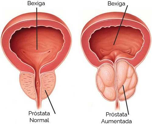Hipertrofia da Próstata