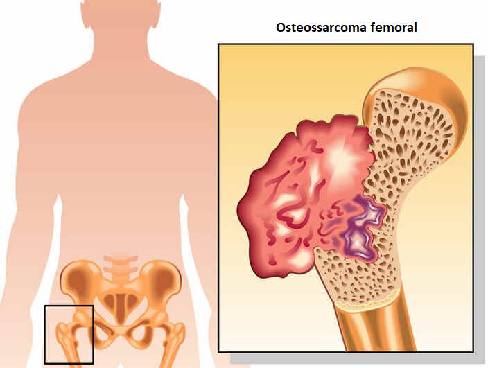 Osteossarcoma