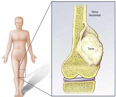 Tumor Ósseo