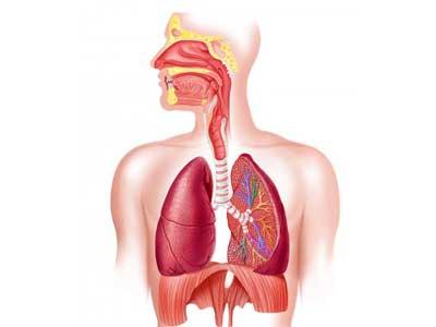 Pneumonia por aspiração