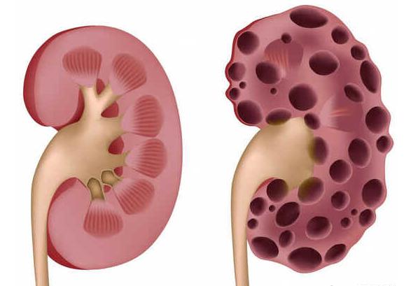 Síndrome renal