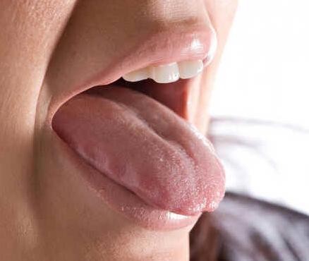 Úlcera oral