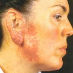 lupus-vulgaris-2