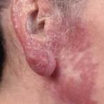 lupus-vulgaris-3