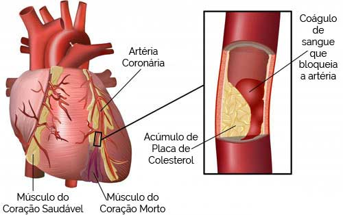 Trombose Arterial