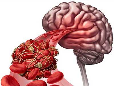 Trombose Cerebral