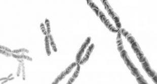 Translocação cromossômica