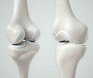 Cartilagem